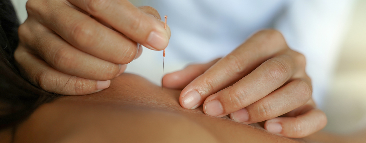 Dry Needling Tell City, Jasper & Santa Claus, IN